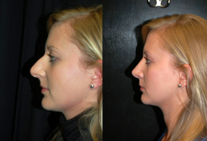 rhinoplasty-campbell-river